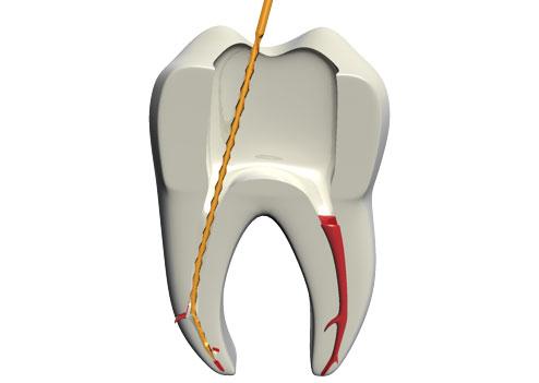 molar vit e