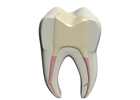 molar wf comp