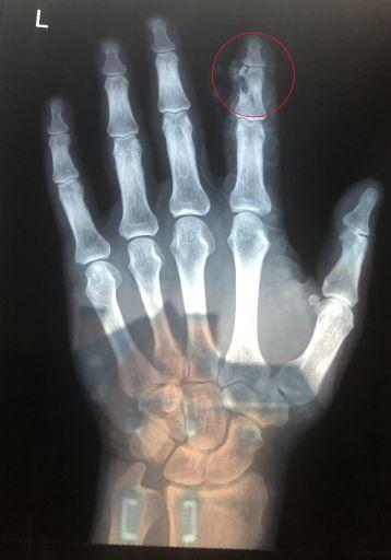Hand2 copy
